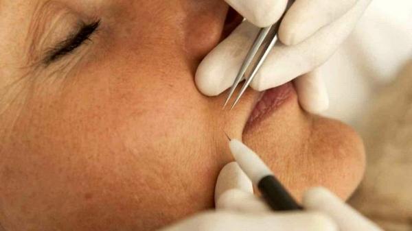 удаление волос на лице током