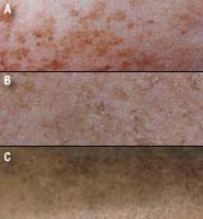 Различные типы пигментации вызываются разными причинами и требуют соответствующего лечения