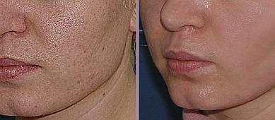 последствия лазерной эпиляции на лице