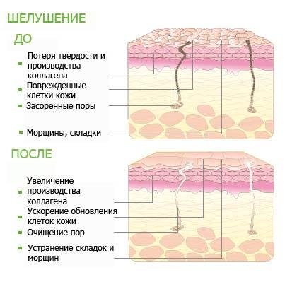 кожа до и после химического пилинга