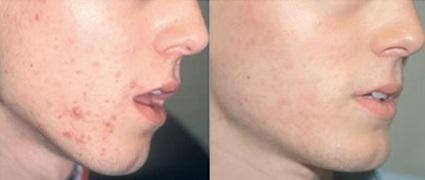 покраснение кожи после эпиляции