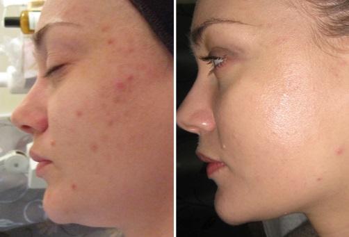 Фото до и после пировиноградного пилинга