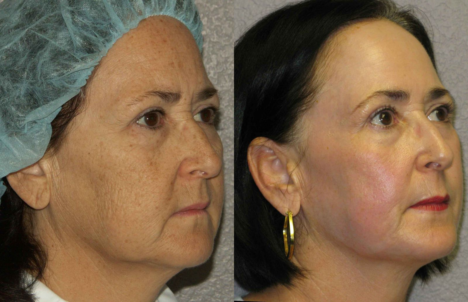 Laser peels before after photos