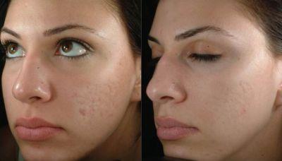 Защитить лицо от пигментных пятен