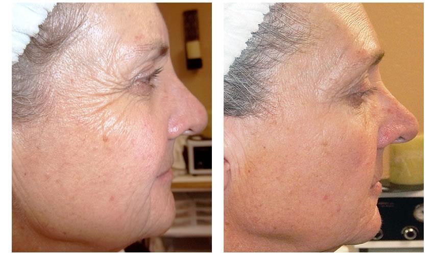 ретиноевый пилинг фото до и после