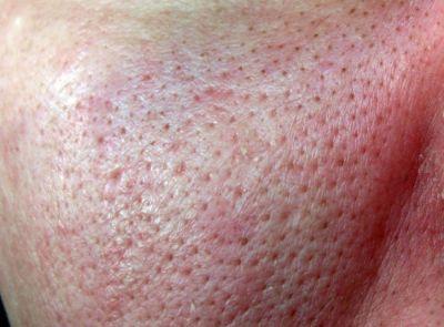 черные точки на коже лица