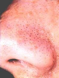 как называются черные точки на лице