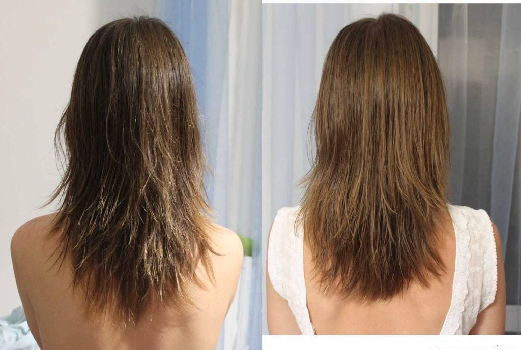парша волосы