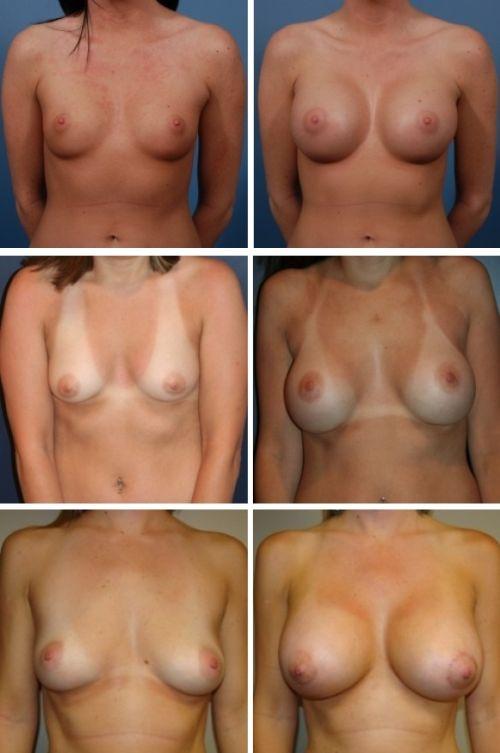 Набухшая грудь у женщин после родов фото