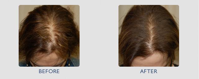 маски для секущихся кончиков волос из алоэ
