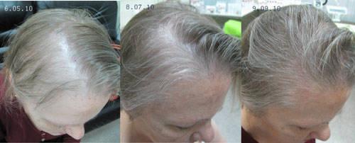 Мезотерапия для волос цены в днепропетровске
