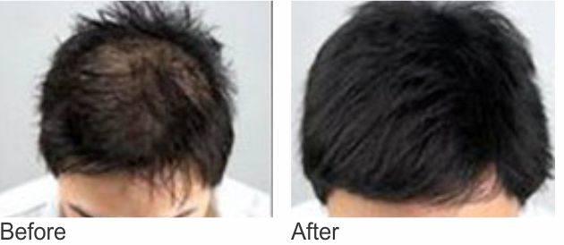 Дарсонваль для волос фото до и после