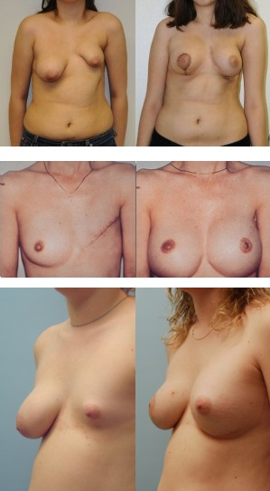 Сколько стоит восстановить грудь