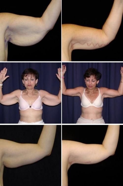 Похудение Обвисание Рук. Как подтянуть обвисшие руки? Красивая форма без пластики!