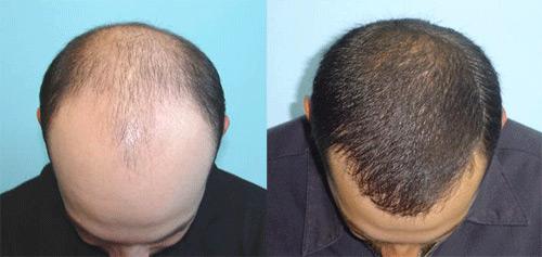 Масло виноградные косточки от выпадения волос