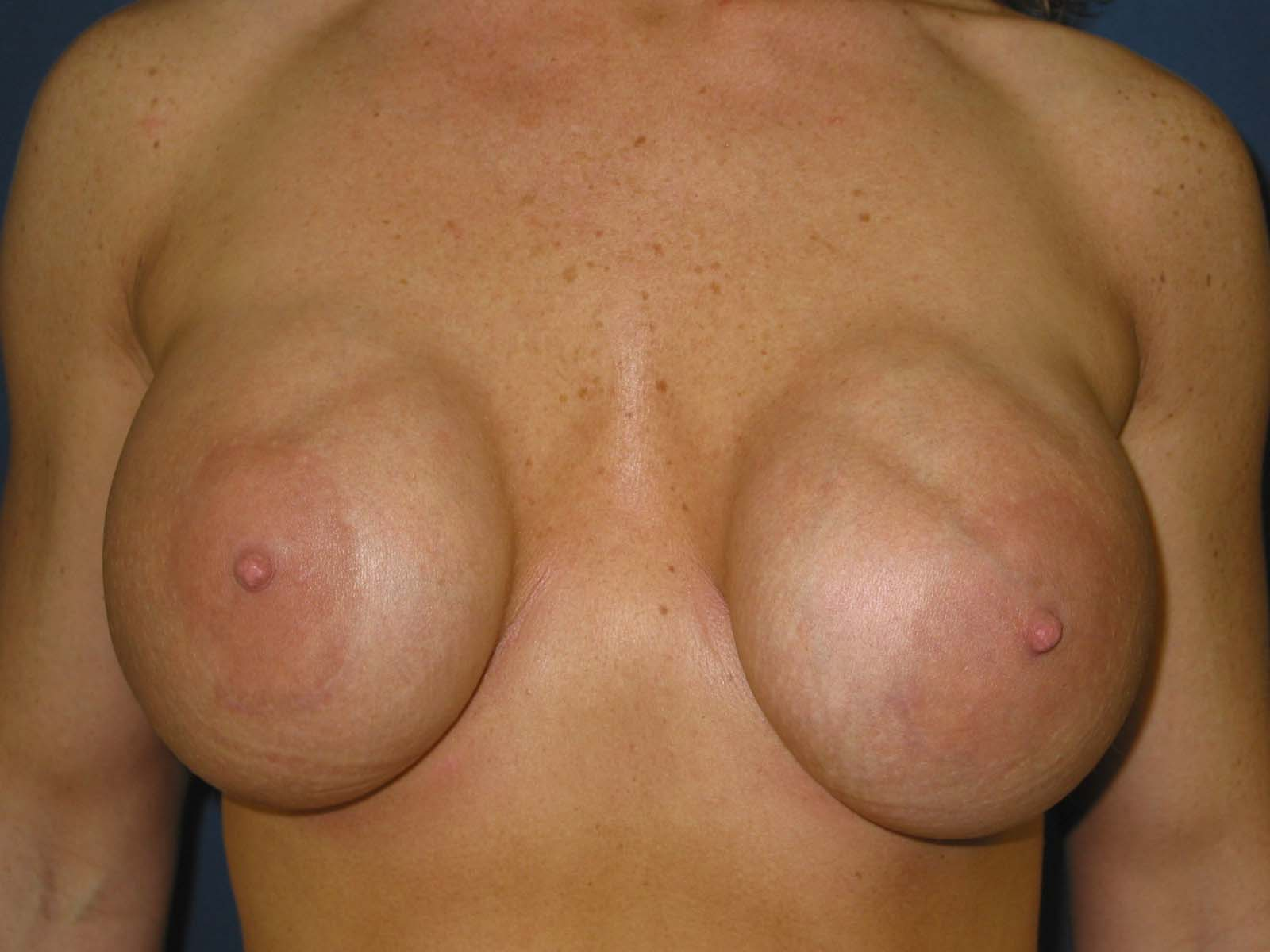 что такое эндопротезы для груди