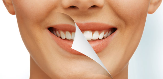 отбеливание зубов отзывы