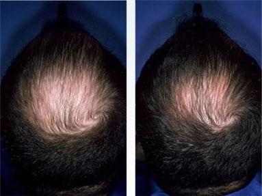 Как правильно пользоваться дарсонваль для волос