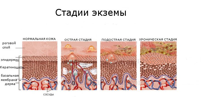 Причины экземы (дерматита) и её лечение.