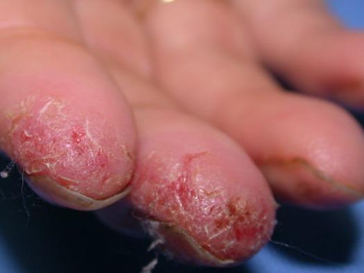 Экзема или дерматит