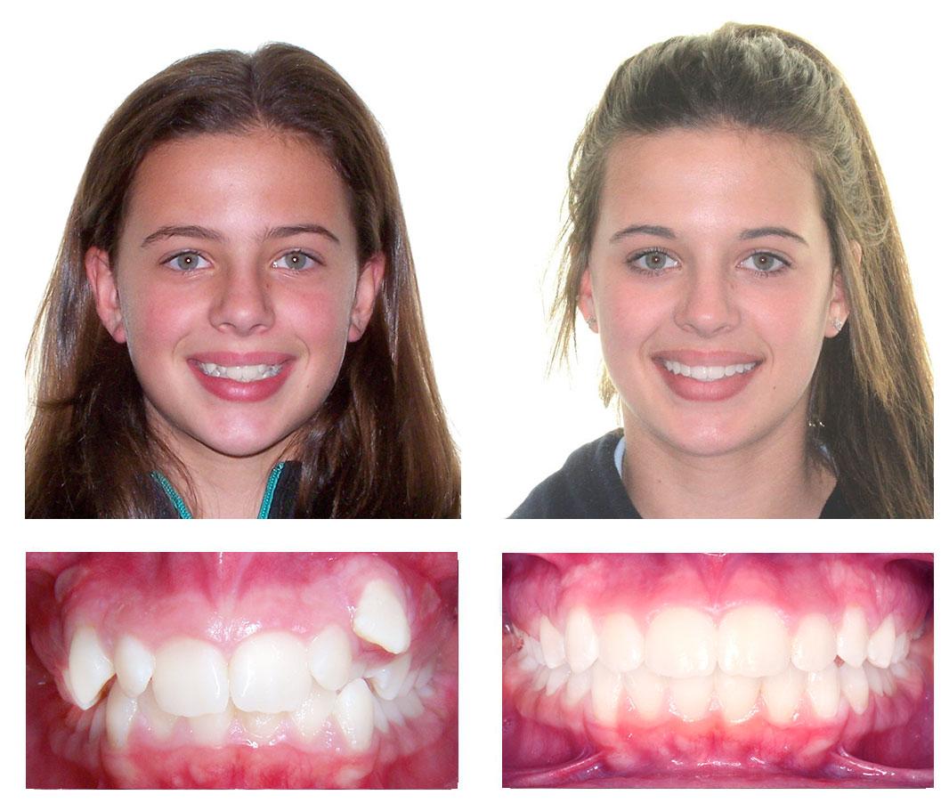 помощи этом как в айфоне поправить зубы на фото меру острый