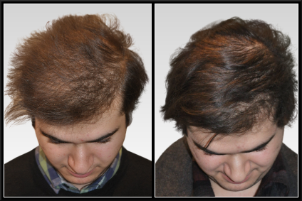 Как часто можно делать маски для волос из репейного и касторового масла