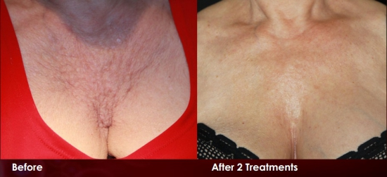 stretch marks on breast area - 909×377