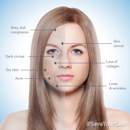 Как курение влияет на цвет лица