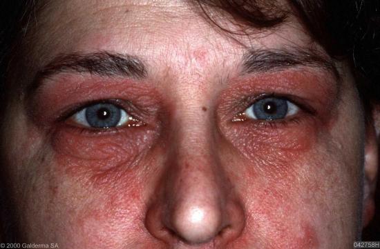 атопический дерматит фото у взрослых на лице