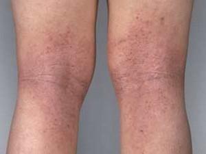 себорейный дерматит на ногах фото