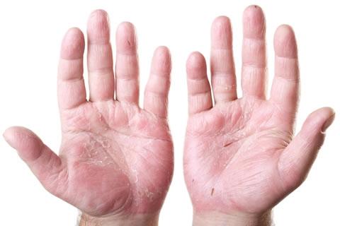Эмоленты при атопическом дерматите название