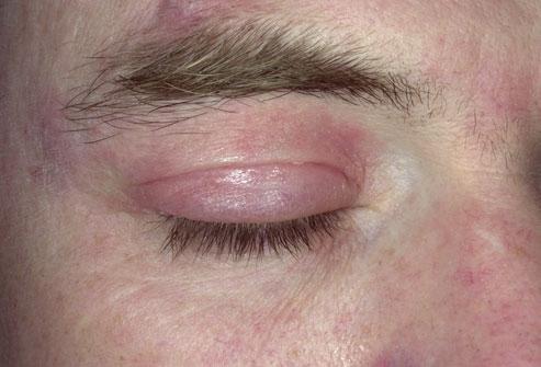 дерматит на глазах у взрослых лечение