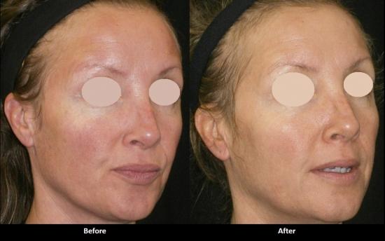 Фотоомоложение лица и псориаз лазерная эпиляция бикини николаев