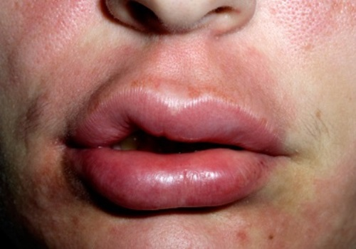 Крем от морщин для контура глаз и губ авен