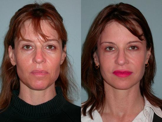 Контурная пластика овала лица до и после