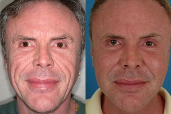 Контурная пластика до и после лица
