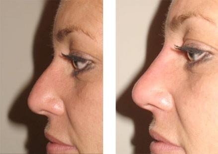 Контурная пластика носа до и после