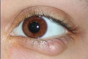 Ячмень на глазу симптомы