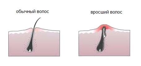 Удаление вросших в кожу волос