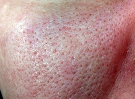 Как избавится от прыщей и красных точек на лице