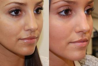 Операция по коррекции носа москва