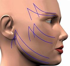 Круговая подтяжка лица без операции  возможна ли