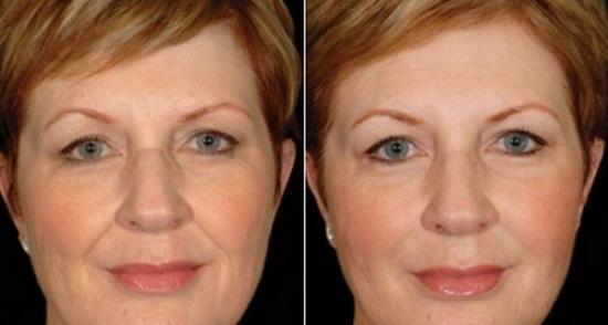 Как подтянуть кожу лица в домашних условиях без посещения салонов