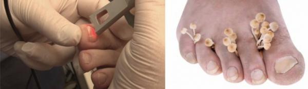 Анализ кожи и ногтей в Одинцово и Звенигороде