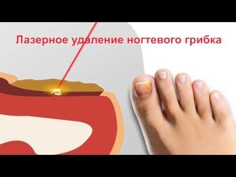 Инструкция экзодерил видео