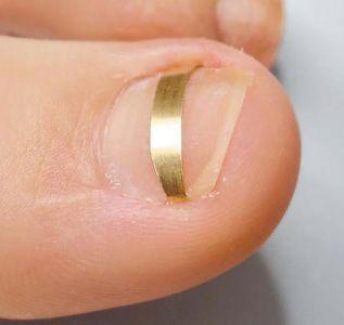 Скобы для коррекции вросшего ногтя 8