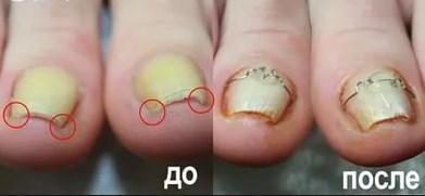 Скобы для коррекции вросшего ногтя 11