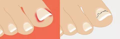 Скобы для коррекции вросшего ногтя 40