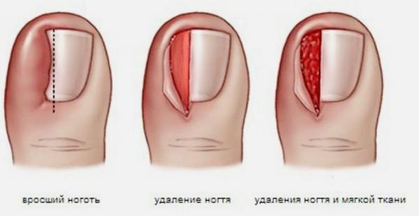 Если удалить ноготь на ноге он вырастет