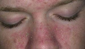 Почему шелушится кожа на лице?